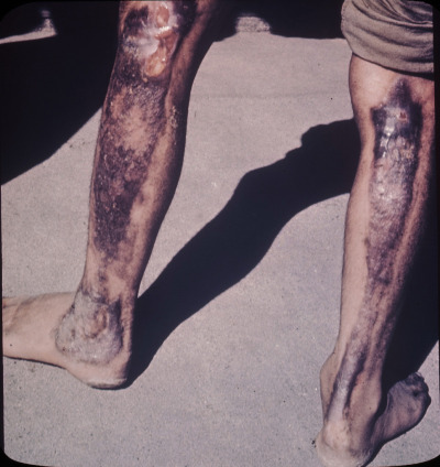 1945. Burns from Hiroshima atomic bomb blast. The blast left impressions of the fabric the person was wearing at the time.