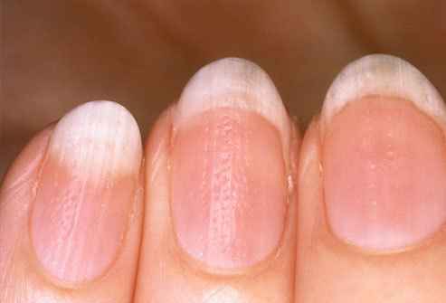 What Your Nails Say About Your Health Summary:  Very white nails could mean Anemia Congestive heart failure Liver disease Malnutrition Yellow nails: fungal infection Bluish nails - not enough oxygen - could signal a lung problem or diabetes Rippled nails-inflammation or psoriasis Cracked or split nails-thyroid problems. Puffy nail fold - lupus - or  another connective tissue disorder Dark lines beneath a nail - could be skin cancer Overly bitten nails- OCD