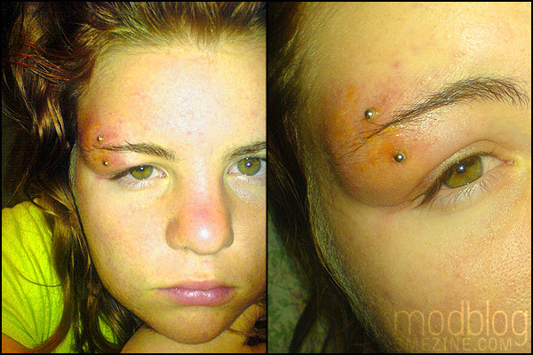 Now this is an infected eyebrow piercing! Look at the swelling, the bruising and the yellow pus crust!
