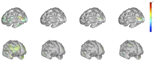 reconstructing the neural sources in a 3D brain model using a Bayesian MN minimum norm approach and combining a wireless EEG headset with a smartphone for runtime processing http://bit.ly/qFb7rf  allows us not only to differentiate whether we are looking at (from left to right): arousing, disgusting, neutral or pleasant images, but also how the prefrontal cortex projecting to core limbic structures are co-activated with visual association areas known to be involved in inferring the conceptual relevance of emotional content http://bit.ly/qQHauz