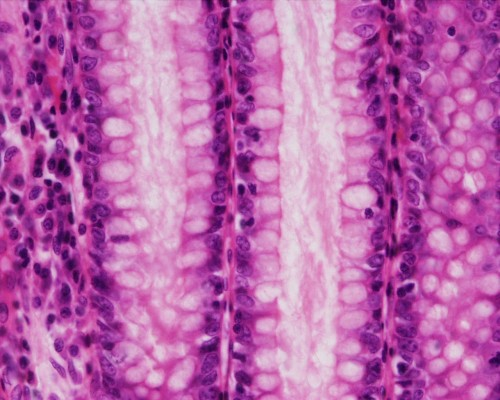Colon, Large Intestine, Crypt of Lieberkuhn, l.s. (H&E stain)