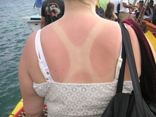 New Study: Drinking Wine May Prevent Sunburn Pinot Coppertone, anyone?