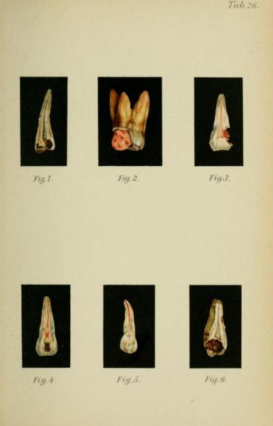 Fig 1. Bicuspid with gangrene of pulpFig 2. Molar with chronic hypertrophic sarcomatous pulpitisFig 3. Incisor with chronic hypertrophic granulomatous pulpitisFig 4. Incisor with chronic total purulent pulpitis - Yellow spots are abscess cavities within the destroyed parenchymaFig 5. Bicuspid with ascending pulpitisFig 6. Wisdom tooth with chronic parenchymatous pulpitis Atlas and Textbook of Dentistry including Diseases of the Mouth. Dr. Gustav Preiswerk, 1906. Translated and edited by George W. Warren.