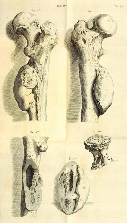 biomedicalephemera:  Exostoses of the leg bones. Exercitationum Anatomico-Chirurgicarum. Godefroid Bidloo, 1708.