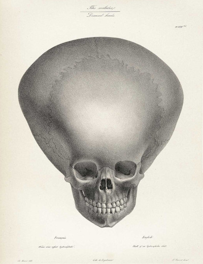 "sutured-infection:  Joseph Vimont and Engelman - ""Skull of a Hydrocephalus Child"", from Traité de Phrénologie Humaine et Comparée, 1832"