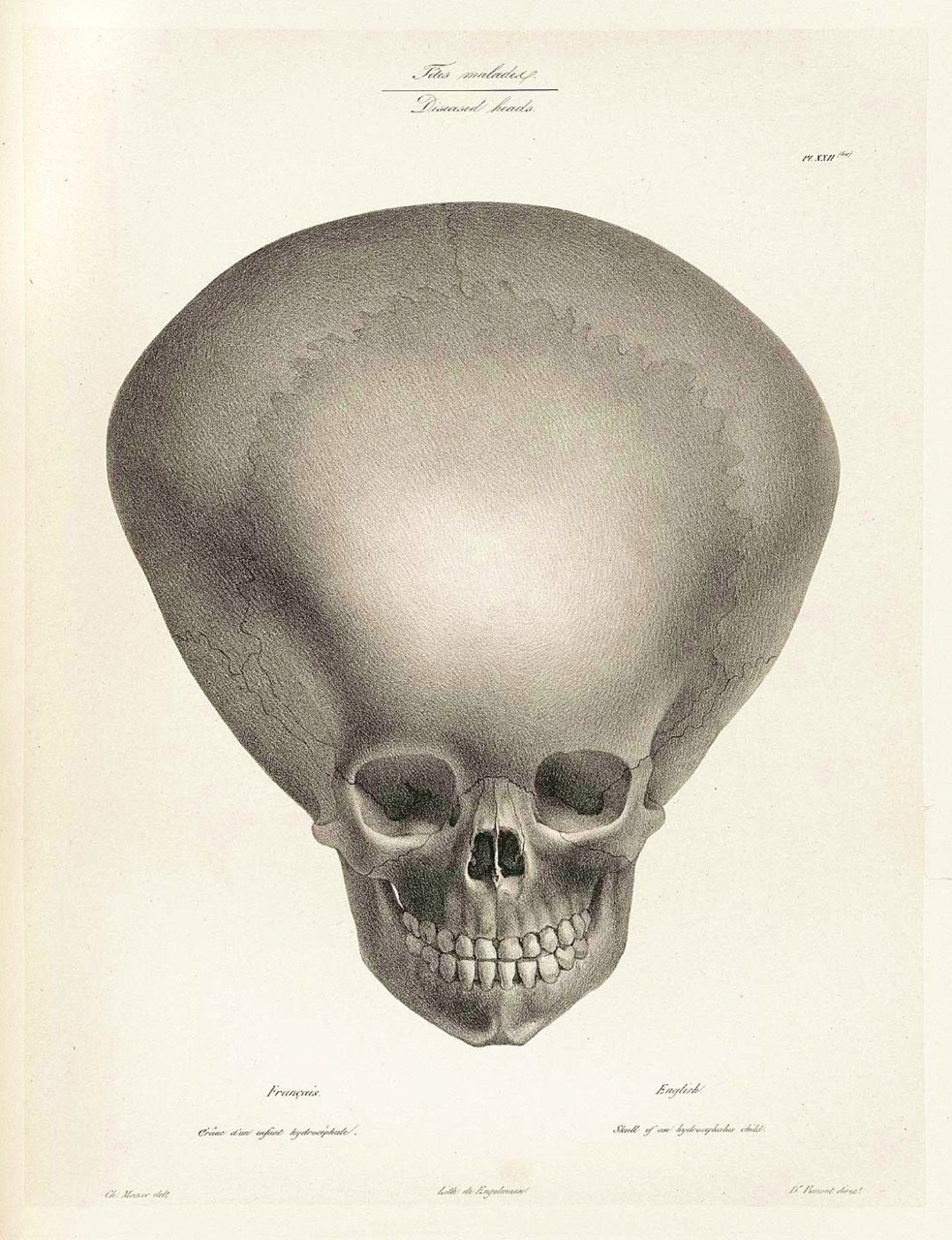 Mars Attacks! Depiction of an hydrocephalic Skull (caused by an abnormal accumulation of cerebrospinal fluid), published in Joseph Vimont's Traité de Phrénologie Humaine - 1832