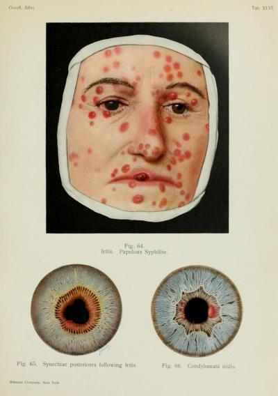 Forms of iritis. Iritis is an inflammation of the iris - it can be caused by dozens of conditions and diseases, and can lead to serious vision loss or blindness. In chronic iritis (much less responsive to treatment than acute iritis, no matter what the primary cause), one of the treatments that sometimes has to be used is subconjunctival steroid injections. Ohhh yes. Eyeball injections. External Diseases of the Eye. Dr. Richard Greeff, 1914.