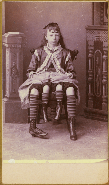 turnofthecentury:  blackandwtf:1880s Josephene Myrtle Corbin, the Four-Legged Woman, was born in Lincoln County, Tennessee in 1868. Rather than having a parasitic twin, Myrtle's extra legs resulted from an even rarer form of conjoined twinning known as dipygus, which gave her two complete bodies from the waist down. She had two small pelves side-by-side, and each of her smaller inner legs was paired with one of her outer legs. She could move the smaller legs but was unable to use them for walking. At the age of 19, she married a doctor named Clinton Bicknell and had four daughters and a son. It has been said that three of her children were born from one set of organs, two from the other. Myrtle died on May 6, 1928. via phreeque