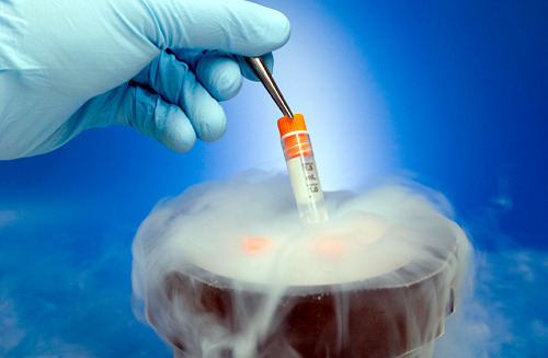 diagnostics:  Cryogenic therapy is a relatively new medical practice that is slowly beginning to replace other low temperature therapies.  It involves exposing the patients entire body to liquid nitrogen for a small amount of time (no more than three minutes or less, as to keep tissues from being damaged).  The cold triggers the release of endorphins which allow for natural pain relief.