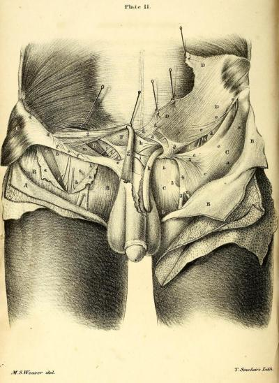 External oblique muscles and related structures. Left side of abdomen reflected to display integument layers and tendon of external obliques. The three layers of fascia are displayed as well. Drawings of the Anatomy of the Groin; with Anatomical Remarks. W. Darrach, M.D., 1844.