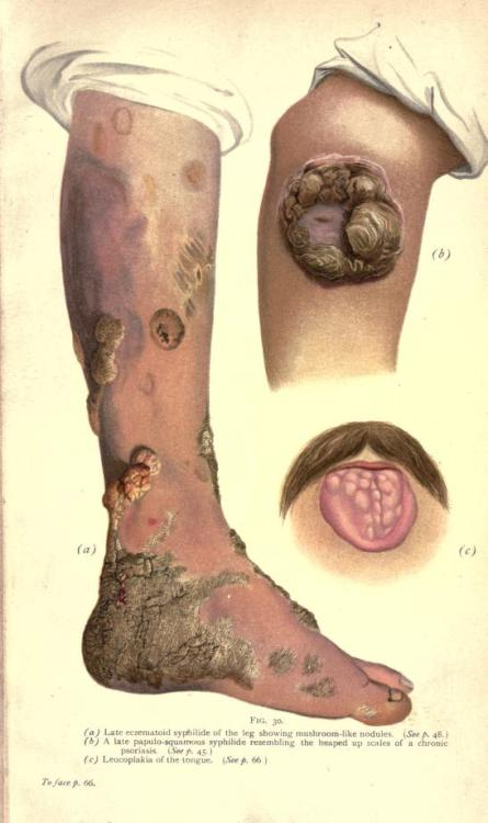 biomedicalephemera:  Venereal disease is rarely limited to the sexual organs when it's not treated… A. Late eczematoid syphilide of the leg showing mushroom-like nodules. B. A late papulo-squamous syphilide resembling the heaped-up scales of a chronic psoriasis. C. Leucoplakia of the tongue.  Oh God.  Whenever I look at medical dictionary, I turn into a hypochondriac for two weeks.