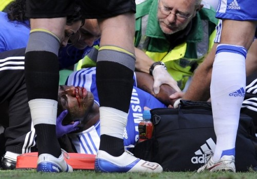fuckyeahchelseafootballclub:  Didier Drogba suffered a bad injury today against Norwich, lets hope he is ok. Legend.