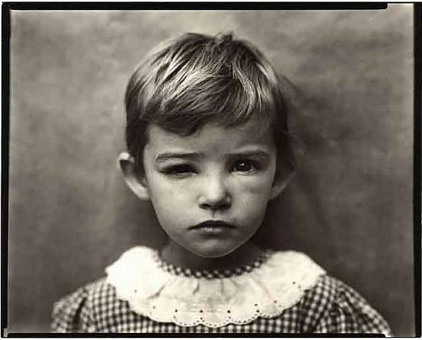 Damaged Child (1984) by Sally Mann