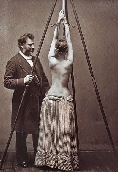 mythologyofblue:   Lewis Sayre and his suspension device for the treatment of scoliosis (1877)  (gravellyrun)