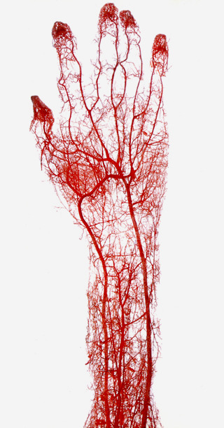 Gunther von Hagens, acid-corrosion cast of the arteries of the adult human hand and forearm