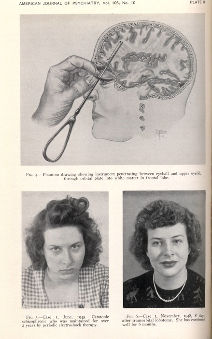 fuckyeahthebizarre:  Lobotomy Case, American Journal of Psychiatry.