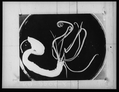 Roundworms in intestine sample. U.S. National Agricultural Research Center, 1935.
