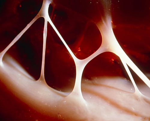 Heart strings (tendons) inside the human heart. (source)  Don't pull on my heartstrings.