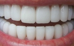 I want teeth like this