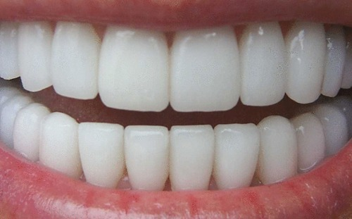 trendymuslim:  i want these teeth wow  So that's what they're suppose to look like! ._.