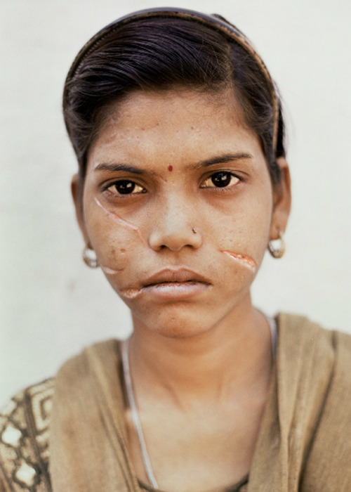 Due to insufficient dowry this young girl's husband lacerated her face with a razor blade. (Gwalior - India) - ph. Adrian Fisk