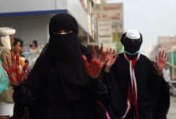 #Yemen - Anti-government protesters show blood on their hands after helping wounded comrade.
