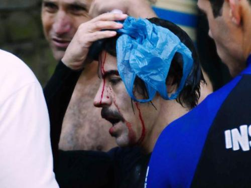 Anthony Kiedis cut his head when Surfing in Rio De Janeiro on September 23rd. Thankfully it was just a 'Minor Thing' and he's back on form again! See Photos of Anthony & Flea Surfing in Rio De Janeiro on Sep 23rd