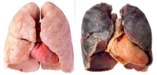 medicalschool:  Lung tissue from a non-smoker (left), and Lung tissue from a cigarette smoker (right)