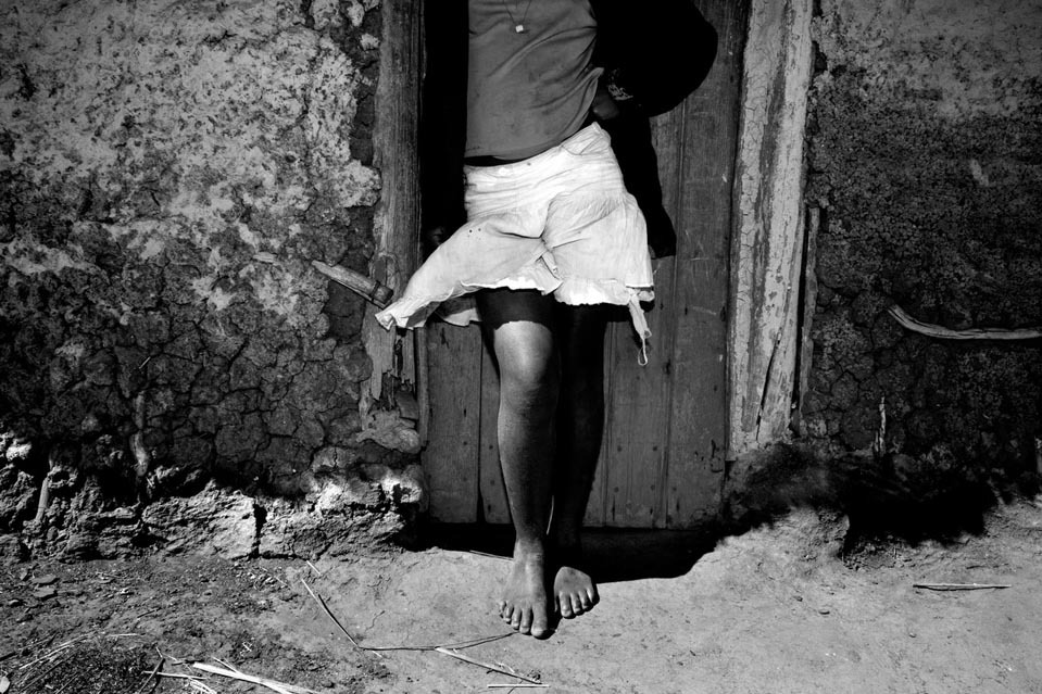 "A young girl wears a miniskirt in rural Swaziland. Western dress such as miniskirts has been deemed ""unSwazi"" and used to justify acts of physical abuse against young girls and women. A new report found that one in three girls has experienced sexual violence by age 18 in Swaziland. The Report was commissioned by UNICEF and the CDC."