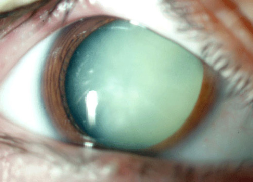 A photo of an eye with dilated pupil demonstrating a mature cataract (does not permit any vision out of the eye).