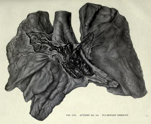 Lungs from Autopsy - Cause of Death: Pulmonary Embolism  You can see the massive thrombus in the main artery of the lung, which led to a sudden death with no preceding symptoms.  Most pulmonary embolisms are caused by blood clots in the deep veins of the legs, but can sometimes be caused by introduction of air into the blood stream, embolization of fat, or amniotic fluid. The Pathology of Influenza. M. C. Winternitz, Isabel Wason, and Frank McNamara, 1920.