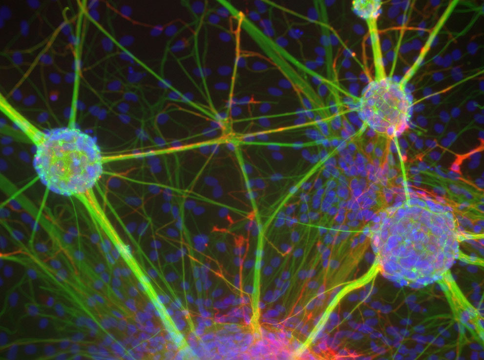 Rat neurons grown as neurospheres. Rowan Orme/ Keele University/ Nikon Small World.