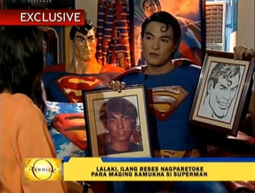"comicsalliance:  Superman Fan Undergoes Cosmetic Surgery To Resemble The Man Of Steel Herbert Chavez is a 35-year-old Filipino man who has since 1995 endured numerous plastic surgeries in an effort to more closely resemble Superman, the legendary DC Comics superhero. Chin augmentation, rhinoplasty and thigh implants are just some of the procedures Chavez, a hardcore Superman fan, has elected to undergo in an unsettling quest that one psychiatrist has identified as symptomatic of Body Dysmorphic Disorder. According to UCLA's Semel Institute for Psychiatry and Biobehavioral Sciences, Body Dysmorphic Disorder is:    …a body image disorder in which individuals are preoccupied with a perceived flaw in physical appearance, which can result in severe functional impairment and suffering. Individuals with BDD usually focus on one or more aspects of their appearance, such as skin, nose, hair, eyes (or any other part of their appearance), which they believe to be defective or ugly. Individuals with BDD often feel depressed, anxious and ashamed. Their degree of anguish and distress is such that it interferes with their day-to-day activities such as work, school, or social situations.  A psychiatrist interviewed by the Philippines' ABS-CBN News (video at link) suggested that Chavez, who works as a ""pageant trainer,"" suffers from BDD. While she did not examine him personally, the doctor's diagnosis would seem to fit the apparent facts. According to RealSelf.com, a website dedicated to the discussion of cosmetic treatments, Chavez's surgeries to more closely resemble Superman and specific Superman actors include:Chin augmentation for the cleft Rhinoplasty to simulate the nose of famous Superman actor Christopher Reeve Silicone lip injections Thigh implants Judging by Chavez's ""before"" photograph, RealSelf speculates that the man has also undergone procedures to alter his eyes, cheeks and jaw, and perhaps more.Read more at ComicsAlliance.  This is beyond creepy."