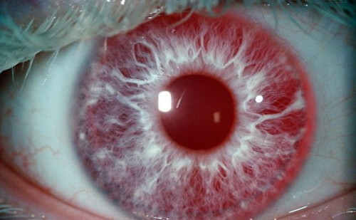 pretty eye deformutilation:  Albinism