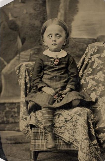 tuesday-johnson:  ca. 1865, [Unidentified Girl with Hydrocephalus] via the International Center of Photography