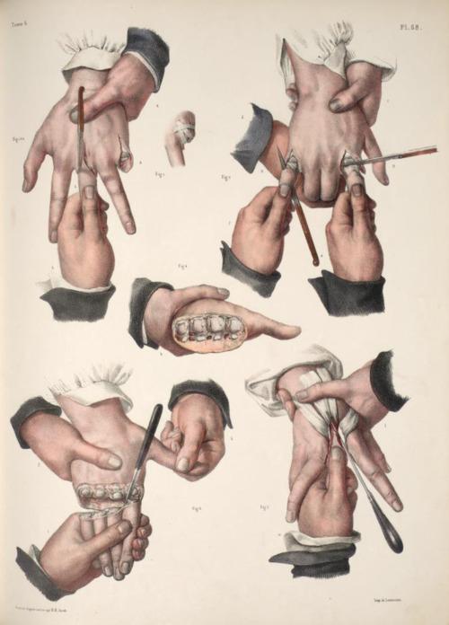 medical diagram on Tumblr
