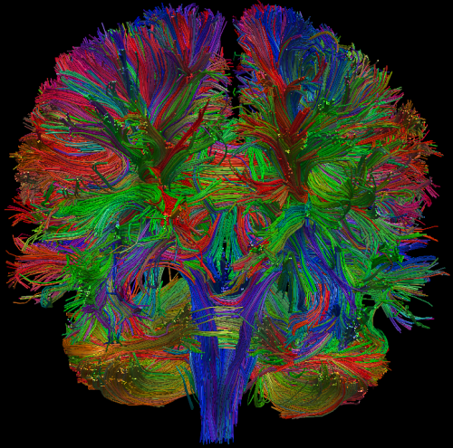"scienceisbeauty:  Diffusion Tensor Imaging (DTI): a magnetic resonance imaging technique that uses single-shot echo-planar MRI pulse sequences which have been optimized to detect the diffusivity of water molecules in tissue. By inducing magnetic gradients in different non-colinear directions while a subject is in the scanner, a series of diffusion weighted images (DWIs) can be acquired. For each given gradient, the echo attenuation values (ie ""intensities"") at each voxel can then be used to calculate the apparent diffusion coefficient (ADC). The set of ADCs for each voxel can be used in turn to calculate the diffusion tensor for that voxel, an ellipsoid which models the diffusion profile of water within that voxel. The eccentricity of the ellipsoid is known as the Fractional Anisotropy (FA); the mean of the three principle eigenvectors is known as the mean diffusivity (MD). Source&Credit: DTI Notes, Jesse Brown, UCLA"