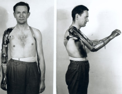 cabbagingcove:  Demonstrating the use of a new model of prosthetic arm. ca. 1950, Walter Reed Hospital  Putting this up for personal reference, do dee do…