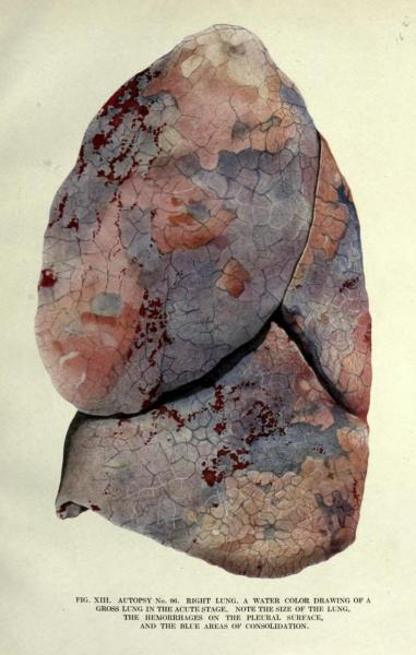 Right lung with surface hemorrhages Lung moderately enlarged due to influenza. Note the consolidation of infectious activity in the blue area. The Pathology of Influenza. M. C. Winternitz, Isabel M. Wason, and Frank P. McNamara, 1920.