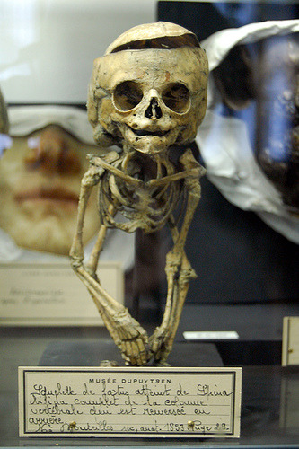 biomedicalephemera:  Skeleton of small child This skeleton is noted to display the characteristics of a severe case of spina bifida, without ancephaly, but with hydrocephalus.  From a museum collection - skeleton from the mid/late 19th century China.