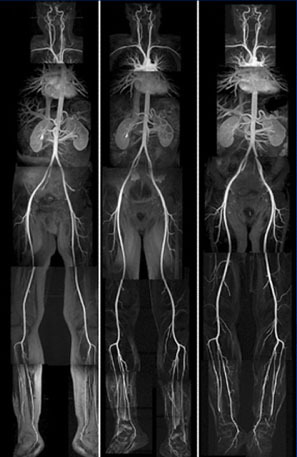 medicalschool:  MR angiogram of the entire body