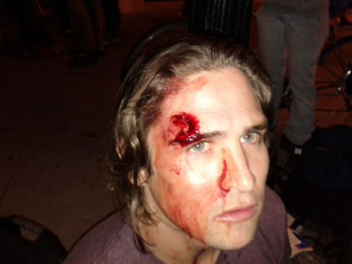 "dsaucedo:  thephrygiancap:  Police State Brutality Made Apparent Tonight @OCCUPYOAKLAND  As a life-long Bay Area resident, I am embarrassed by the behavior of the local government and police force. According to the Associated Press, the OPD is denying using flash grenades and rubber bullets, despite eyewitness accounts, helicopter footage and these photos. History is not going to be kind to those on the wrong side of this fight. The whole world is watching.  Well put Danny. Those I know in Oakland were saying that it was a warzone last night.  It's hard to believe this happened just across the bay. People around here are lulled into thinking that we live in some kind of progressive mecca, and that something as vile as these ""raids"" on protesters can't happen here. Even more is the News today that in the last 30 years the income of the top one percent has risen by 300%, and that they now control 20% of overall income in America. Despicable Vulture Scum."
