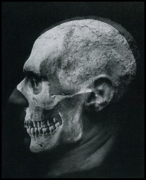 Photographer unknown, early 20th century, A chilling anatomic study double exposure (thanks to / via: mudwerks) » find more photomontage art here «
