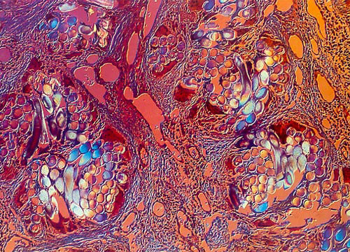 magnified-world:  Skin with silastic implant at 100x magnification.  18th place in the 1984 Nikon Small World Competition.