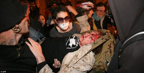 robotlyra:  lucyzephyr:  twelvebats:  goddamazon:  complexitii:  NSFW: Occupy Oakland: Iraq war veteran in critical condition after police clashes  I know why U.S. media is ignoring this but I'm still so far beyond disgusted.  Yo, we need to get this out here. Is this how the cops treat people who fought for their right to abuse their badges? Forever reblog.  This needs to get passed around fast  Please, for the love of god, reblog. There is video of people going to help this guy and a cop watching them, and throwing a flash bang directly at them as they try to get this man help. This is how police react to American exercising their first amendment rights. With violence.   Footage of the event. This shit is getting serious, guys. That kid is in surgery for the skull fracture due to the injury. The injury was right on the speech center of his brain. He can't talk.