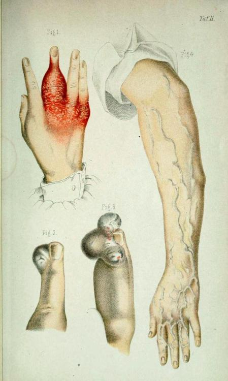 biomedicalephemera:    Fig 1. Dactylitis syphilitica - Look, just don't get syphilis, ok? It hates your entire body, not just your genitals. Fig 2. Digitale angiome - A benign tumor of the blood vessels or lymphatic system (most likely of the blood vessels), found on the finger. Fig 3. Digitale angiome - Same as above, with multiple growths forming nearby one another. Fig 4. Congenitale diffuse Angiektasie der oberen Extremitaten - Diffuse congenital dilation of the blood vessels of the upper extremities. This is often caused by poor valves within the veins that keep the blood flowing back toward the heart, leading to pooling of blood and expansion of the vessels. It's the same as secondary varicose veins, but is present from birth, and is often more extensive. Die Chiurgischen Krankheiten der Oberen Extremitatan. Paul Vogt, 1881.
