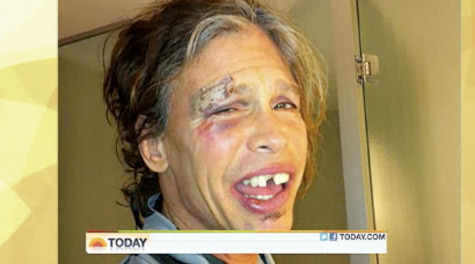 Hey Steve Tyler, your face is sorta all kinds of fucked up Steven Tyler is recovering after passing out in the shower of his South America hotel room from food poisoning and dehydration. This is NOT a Halloween costume. Via