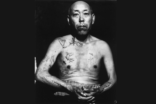 picturesofwar:  The scars of Jinpe Teravama, nearly two years after surviving the atomic bombing of Hiroshima.
