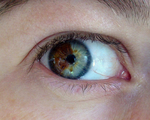 Have you always wanted blue eyes? A Californian optometrist has been researching a laser technique to permanently change brown eyes to blue - click to read more and then tell us if you would ever undergo a procedure like this!