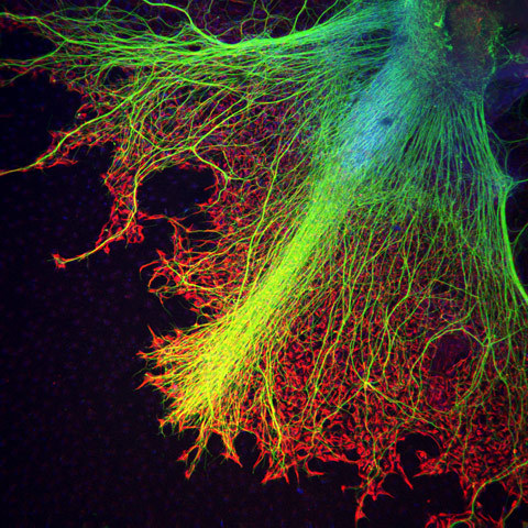 biocanvas:  Neurons (in blue to yellow) growing on top of astrocytes (in red, helper cells within the nervous system) in a human stem cell embryoid body (a cluster of differentiating human embryonic stem cells). Image by Juan Carlos Izpisúa, Center of Regenerative Medicine in Barcelona.